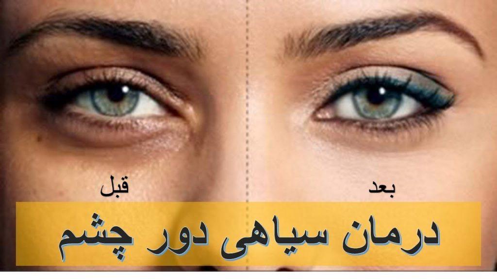 درمان سیاهی اطراف چشم