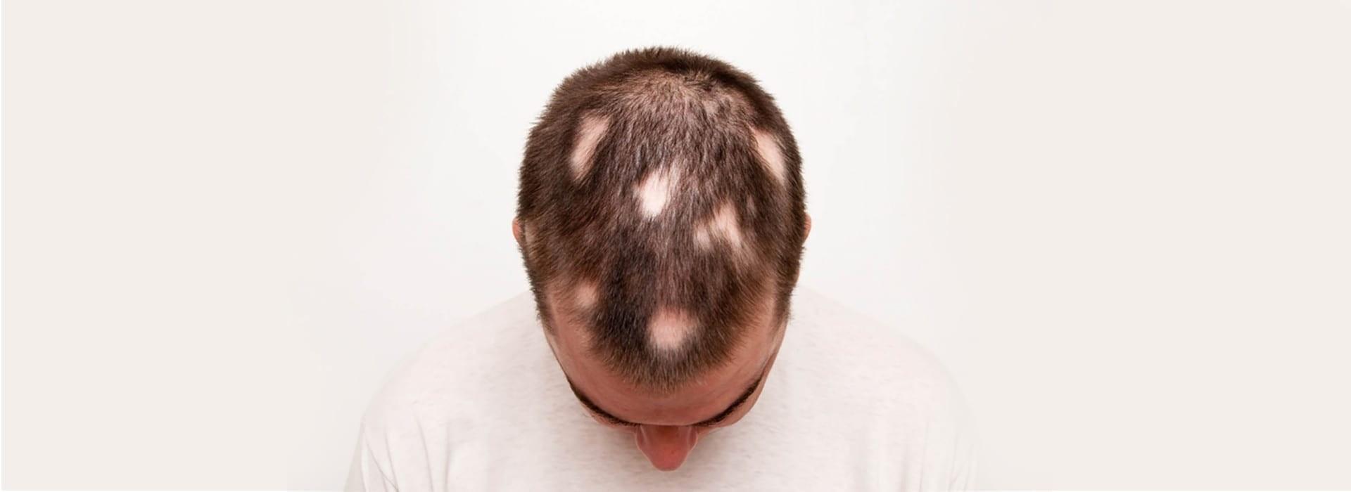 درمان ریزش مو سکهای